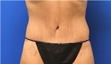 Tummy Tuck After Photo by Rudolf Thompson, MD; Colts Neck, NJ - Case 30727