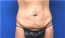 Tummy Tuck Before Photo by Rudolf Thompson, MD; Colts Neck, NJ - Case 30727