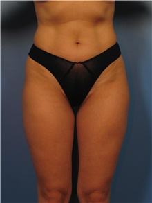 Body Contouring After Photo by Eric Mariotti, MD; Concord, CA - Case 40180