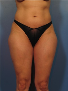 Body Contouring Before Photo by Eric Mariotti, MD; Concord, CA - Case 40180