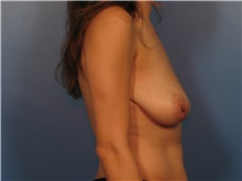 Breast Lift Before Photo by Eric Mariotti, MD; Concord, CA - Case 40181