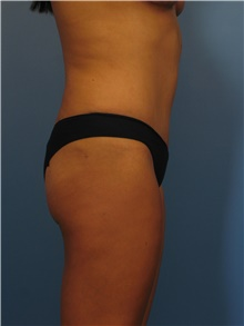 Body Contouring After Photo by Eric Mariotti, MD; Concord, CA - Case 40182