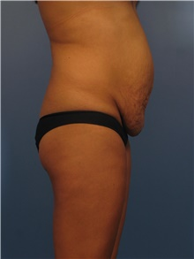Body Contouring Before Photo by Eric Mariotti, MD; Concord, CA - Case 40182
