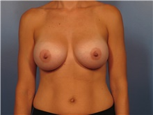 Breast Augmentation After Photo by Eric Mariotti, MD; Concord, CA - Case 40183