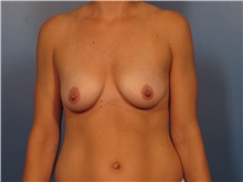 Breast Augmentation Before Photo by Eric Mariotti, MD; Concord, CA - Case 40183