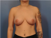Breast Reduction After Photo by Eric Mariotti, MD; Concord, CA - Case 40184