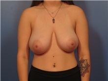Breast Reduction Before Photo by Eric Mariotti, MD; Concord, CA - Case 40184