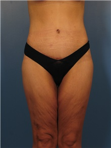 Body Lift After Photo by Eric Mariotti, MD; Concord, CA - Case 40185