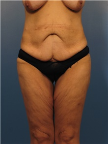 Body Lift Before Photo by Eric Mariotti, MD; Concord, CA - Case 40185