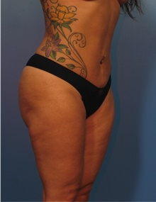 Liposuction After Photo by Eric Mariotti, MD; Concord, CA - Case 40854