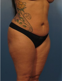 Liposuction Before Photo by Eric Mariotti, MD; Concord, CA - Case 40854