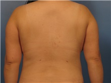Liposuction After Photo by Eric Mariotti, MD; Concord, CA - Case 40982