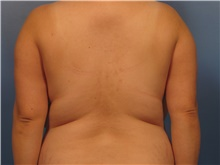 Liposuction Before Photo by Eric Mariotti, MD; Concord, CA - Case 40982