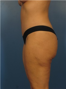 Tummy Tuck After Photo by Eric Mariotti, MD; Concord, CA - Case 40986