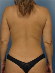 Liposuction After Photo by Eric Mariotti, MD; Concord, CA - Case 40987