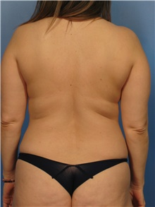 Liposuction Before Photo by Eric Mariotti, MD; Concord, CA - Case 40987