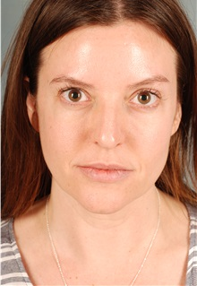 Dermal Fillers After Photo by Geoffrey E. Leber, MD, FACS; Scottsdale, AZ - Case 28654