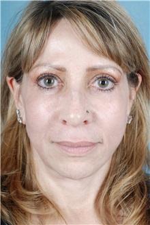 Dermal Fillers After Photo by Geoffrey Leber, MD, FACS; Scottsdale, AZ - Case 28660