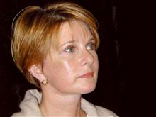 Facelift After Photo by Miguel Delgado, MD; Novato, CA - Case 28933