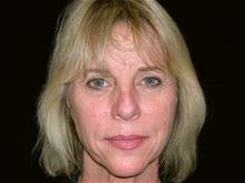 Facelift Before Photo by Miguel Delgado, MD; Novato, CA - Case 28952