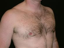 Male Breast Reduction After Photo by Miguel Delgado, MD; Novato, CA - Case 28963