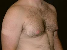 Male Breast Reduction Before Photo by Miguel Delgado, MD; Novato, CA - Case 28963