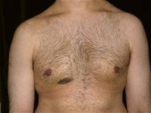 Male Breast Reduction After Photo by Miguel Delgado, MD; Novato, CA - Case 28965
