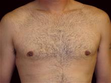 Male Breast Reduction After Photo by Miguel Delgado, MD; Novato, CA - Case 28971