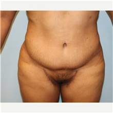 Tummy Tuck After Photo by Scott Tucker, MD; Winston-Salem, NC - Case 40369