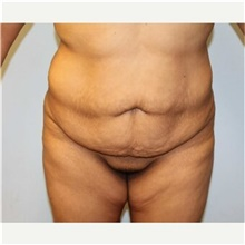 Tummy Tuck Before Photo by Scott Tucker, MD; Winston-Salem, NC - Case 40369