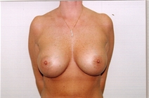 Breast Augmentation After Photo by Joe Griffin, MD; Florence, SC - Case 22800