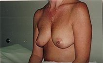 Breast Augmentation Before Photo by Joe Griffin, MD; Florence, SC - Case 22800
