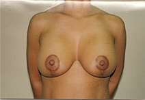 Breast Augmentation After Photo by Joe Griffin, MD; Florence, SC - Case 22818