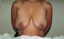 Breast Augmentation Before Photo by Joe Griffin, MD; Florence, SC - Case 22818