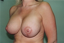 Breast Augmentation After Photo by Joe Griffin, MD; Florence, SC - Case 22819