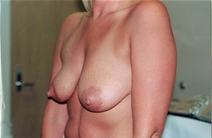 Breast Augmentation Before Photo by Joe Griffin, MD; Florence, SC - Case 22819