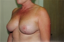 Breast Lift After Photo by Joe Griffin, MD; Florence, SC - Case 22820