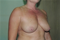 Breast Lift Before Photo by Joe Griffin, MD; Florence, SC - Case 22820