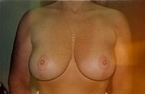 Breast Lift After Photo by Joe Griffin, MD; Florence, SC - Case 22821