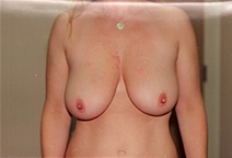 Breast Lift Before Photo by Joe Griffin, MD; Florence, SC - Case 22821