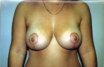 Breast Lift After Photo by Joe Griffin, MD; Florence, SC - Case 22822