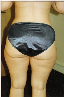 Liposuction Before Photo by Joe Griffin, MD; Florence, SC - Case 22823