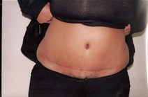 Tummy Tuck After Photo by Joe Griffin, MD; Florence, SC - Case 22824