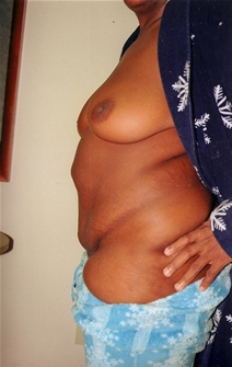 Tummy Tuck Before Photo by Joe Griffin, MD; Florence, SC - Case 22824