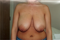 Breast Reduction Before Photo by Joe Griffin, MD; Florence, SC - Case 22829