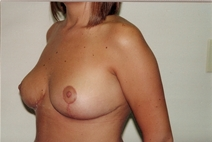 Breast Reduction After Photo by Joe Griffin, MD; Florence, SC - Case 22829