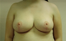 Breast Reduction After Photo by Joe Griffin, MD; Florence, SC - Case 22830