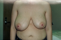 Breast Reduction Before Photo by Joe Griffin, MD; Florence, SC - Case 22830