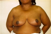 Breast Reduction After Photo by Joe Griffin, MD; Florence, SC - Case 22831