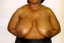 Breast Reduction Before Photo by Joe Griffin, MD; Florence, SC - Case 22831